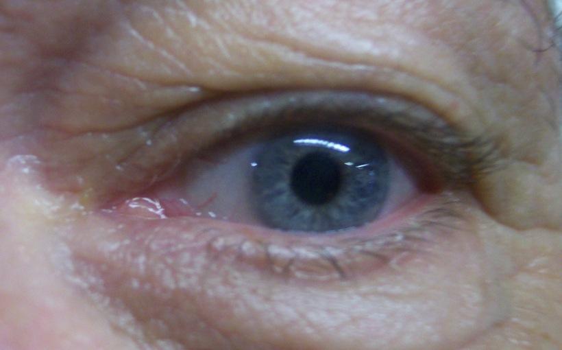 blue eye of man