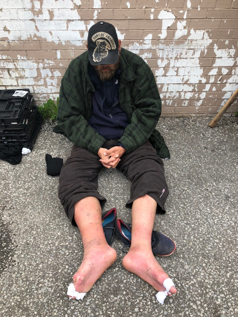 How the homeless can suffer without the simple gift of second-hand shoes.